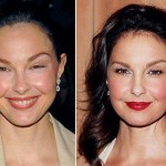 Ashley Judd before and after Plastic Surgery (28)