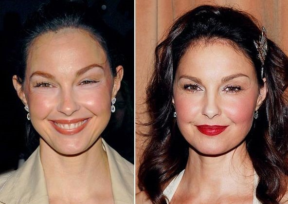ashley judd before and after plastic surgery 28