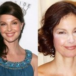 Ashley Judd before and after Plastic Surgery (8)