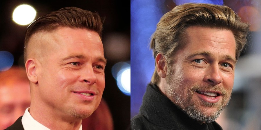 brad pitt before and after plastic surgery 10