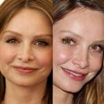 Calista Flockhart before and after plastic surgery (17)