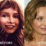 Calista Flockhart before and after plastic surgery (24)