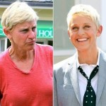 Ellen DeGeneres before and after plastic surgery (11)
