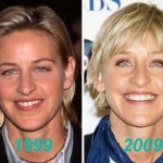 Ellen DeGeneres before and after plastic surgery (12)