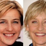 Ellen DeGeneres before and after plastic surgery (13)
