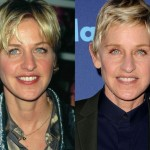 Ellen DeGeneres before and after plastic surgery