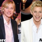 Ellen DeGeneres before and after plastic surgery (9)