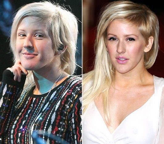 ellie goulding plastic surgery for glamour and beauty. Black Bedroom Furniture Sets. Home Design Ideas