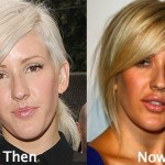 Ellie Goulding before and after plastic surgery (18)