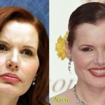 Geena Davis before and after plastic surgery (11)