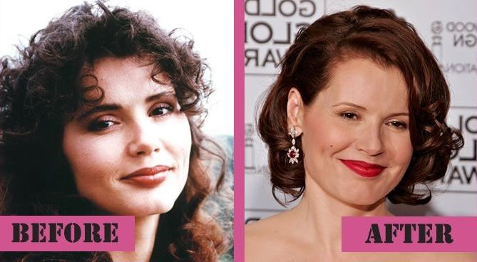 Geena Davis before and after plastic surgery