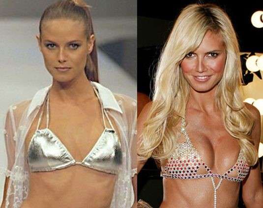 Heidi Klum before and after plastic surgery (19)