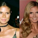 Heidi Klum before and after plastic surgery (20)