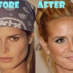 Heidi Klum before and after plastic surgery (26)