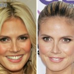 Heidi Klum before and after plastic surgery (27)