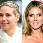 Heidi Klum before and after plastic surgery (30)