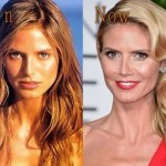 Heidi Klum then and now plastic surgery (25)