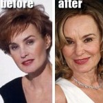Jessica Lange before and after plastic surgery (17)