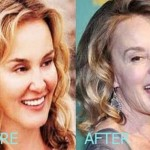 Jessica Lange before and after plastic surgery (23)