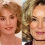 Jessica Lange before and after plastic surgery (25)