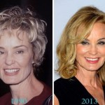 Jessica Lange before and after plastic surgery (26)
