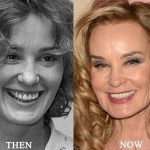 Jessica Lange before and after plastic surgery (30)