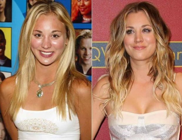 Kaley Cuoco before and after breast augmentation