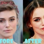 Keira Knightley Plastic Surgery (22)