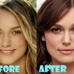 Keira Knightley Plastic Surgery (28)