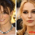 Keira Knightley Plastic Surgery (8)