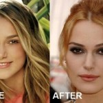 Keira Knightley before and after Plastic Surgery (2)