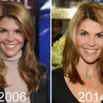 Lori Loughlin before and after plastic surgery (14)