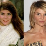 Lori Loughlin before and after plastic surgery (9)