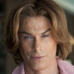Rob Lowe after plastic surgery (1)