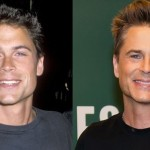 Rob Lowe before and after plastic surgery (19)
