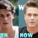 Rob Lowe before and after plastic surgery (20)