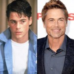 Rob Lowe before and after plastic surgery (3)