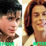 Rob Lowe before and after plastic surgery (31)