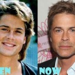 Rob Lowe before and after plastic surgery (32)