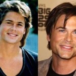Rob Lowe before and after plastic surgery (33)
