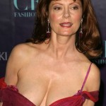 Susan Sarandon plastic surgery (1)