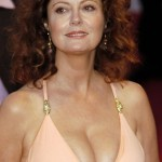 Susan Sarandon plastic surgery (13)