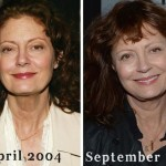 Susan Sarandon plastic surgery (19)