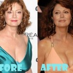 Susan Sarandon plastic surgery (23)