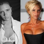Victoria Beckham before and after breast augmentation (18)