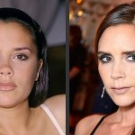 Victoria Beckham before and after facelift (8)