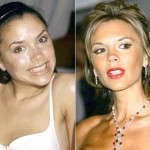 Victoria Beckham before and after plastic surgery (17)
