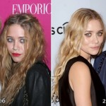 Ashley and Mary Kate Olsen before and after plastic surgery