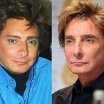 Barry Manilow before and after plastic surgery (5)