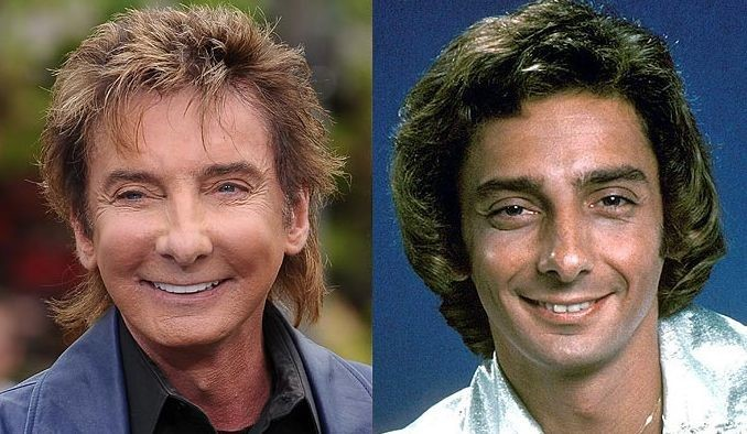 Barry Manilow before and after plastic surgery